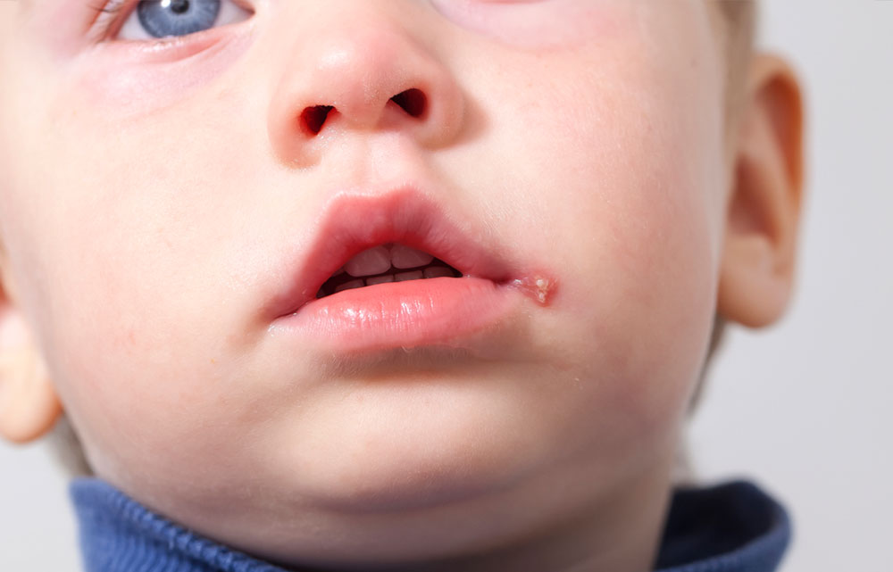Barn med munsår i mungipan (herpes labialis)