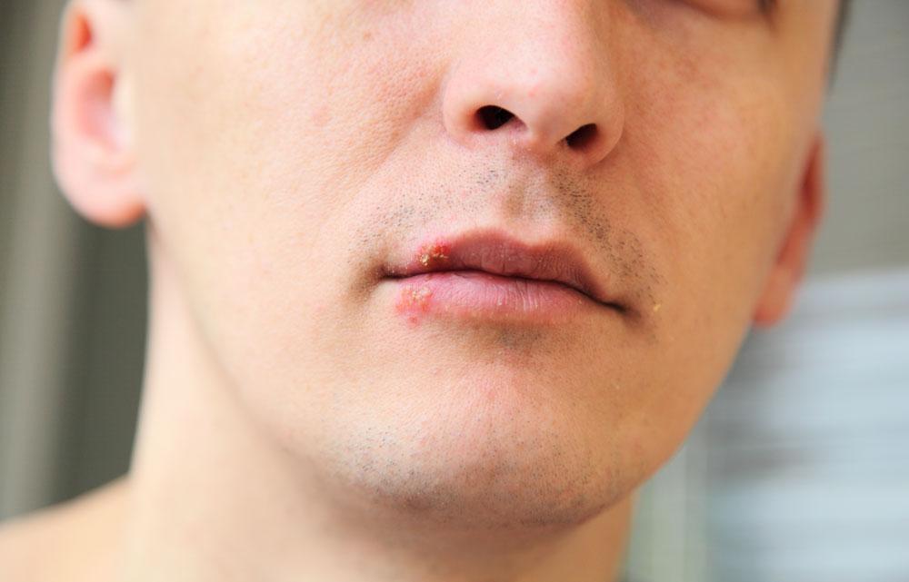 Herpes Simplex Virus - Munsår på läppen.