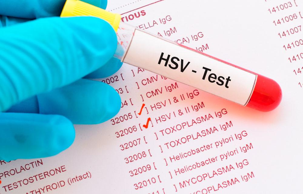 Herpes genitalis test och provsvar.