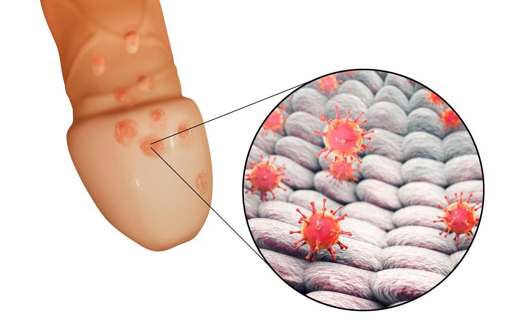 Herpes genitalis - utbrott av herpes på penis.
