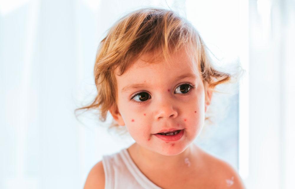 Vattkoppor på barn orsakat av Herpes.